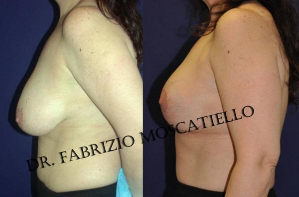 reduccion de senos Sabadell